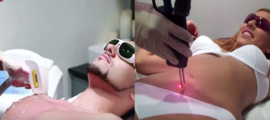 laser alejandrita o diodo