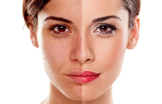 luz pulsada o ipl manchas facial y acne