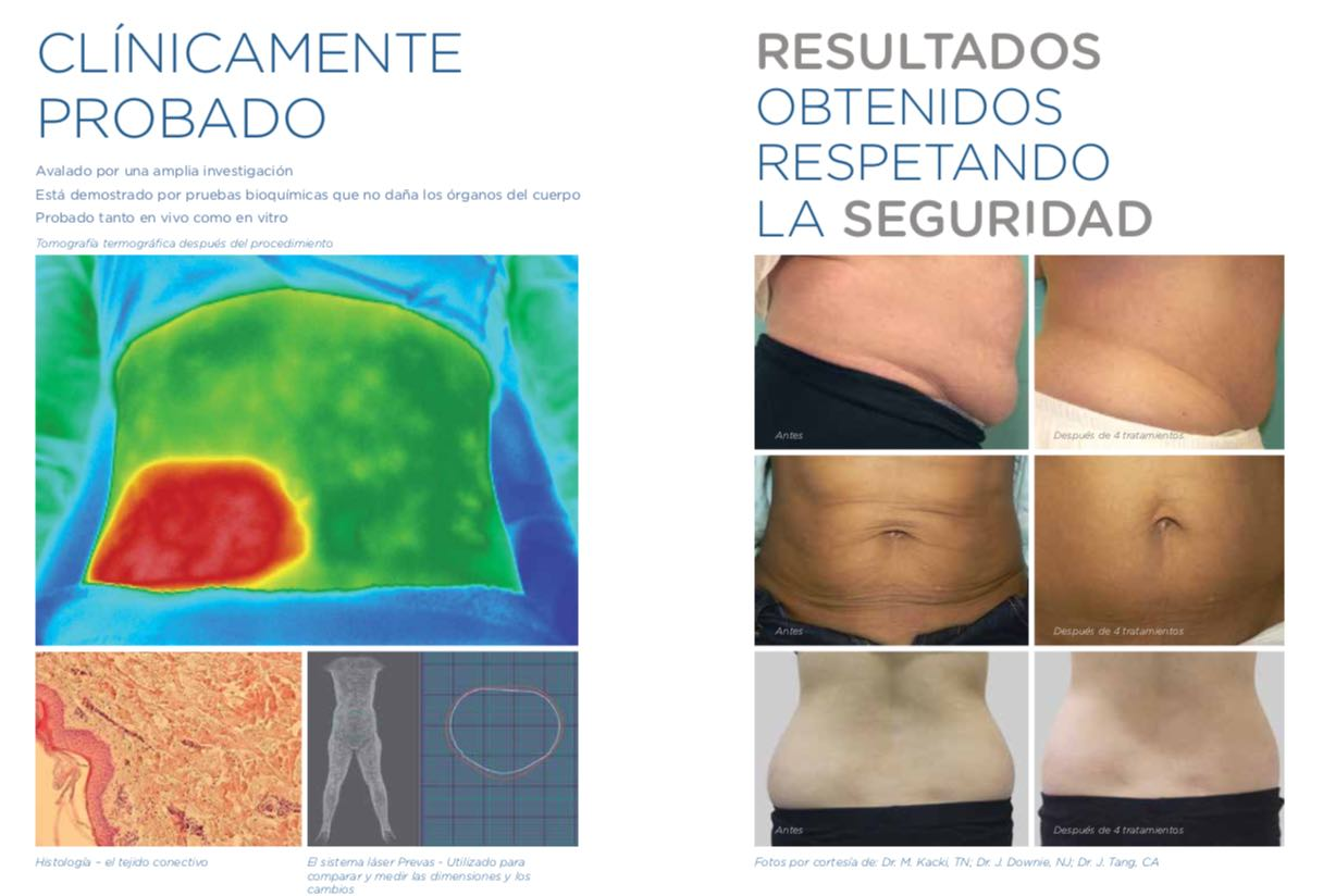 antes y despues exilis
