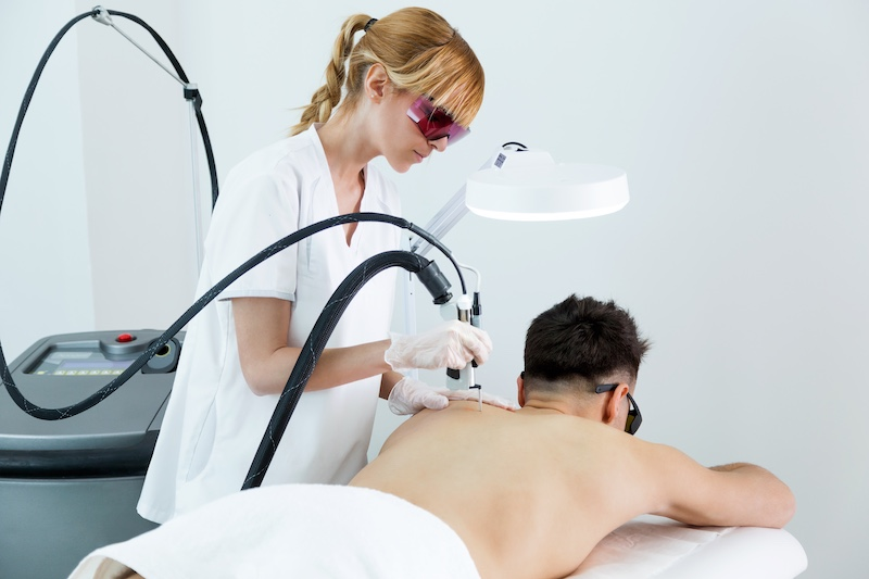 depilacion laser espalda