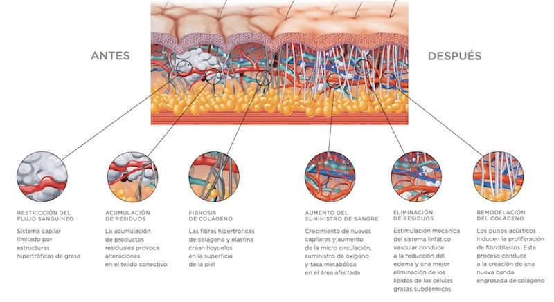 dermoplastia celulitis